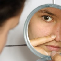 Fighting Teen Acne with Selfie Esteem Event